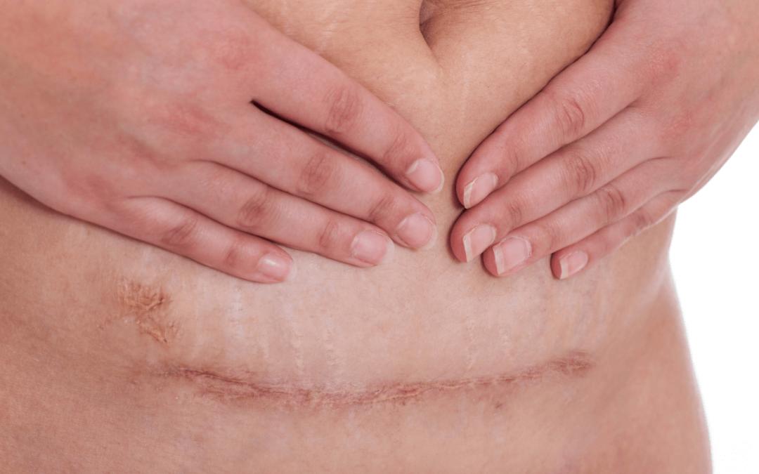 Come recuperare le cicatrici del parto con l'osteopatia